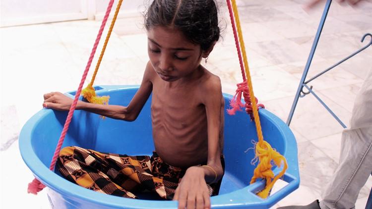 yemen child_1542802433409.jpg.jpg