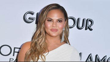 Chrissy Teigen shows son wearing a corrective helmet