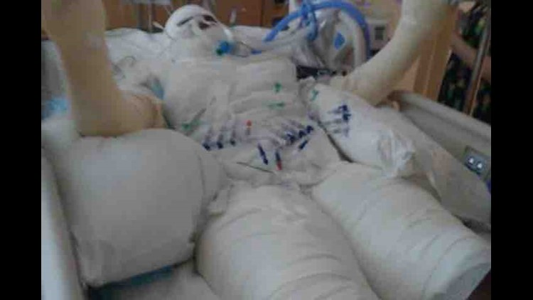 'Fire Challenge' Leaves Girl, 12, With Burns Over Half Her Body