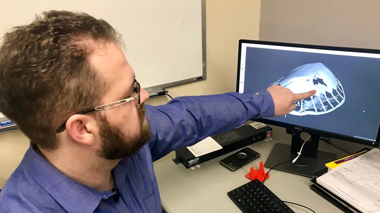 University of Minnesota Ph.D. student David Fay points to the damage to Seemore's shell as depicted in a computer model