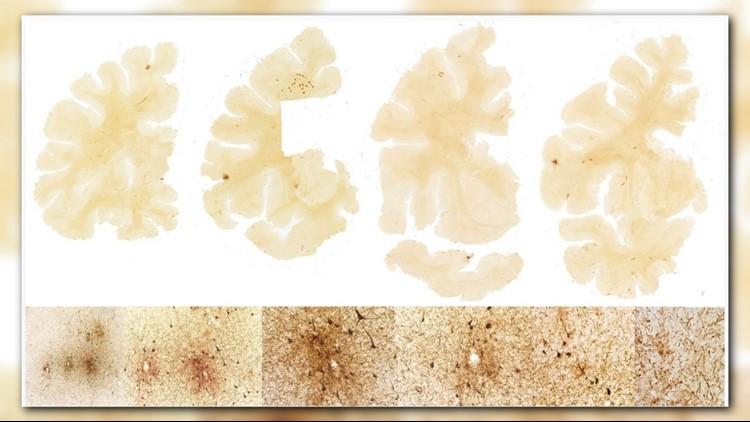 Kevin brain scan