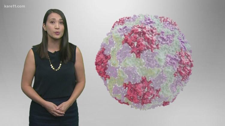 MN declares outbreak of hepatitis A
