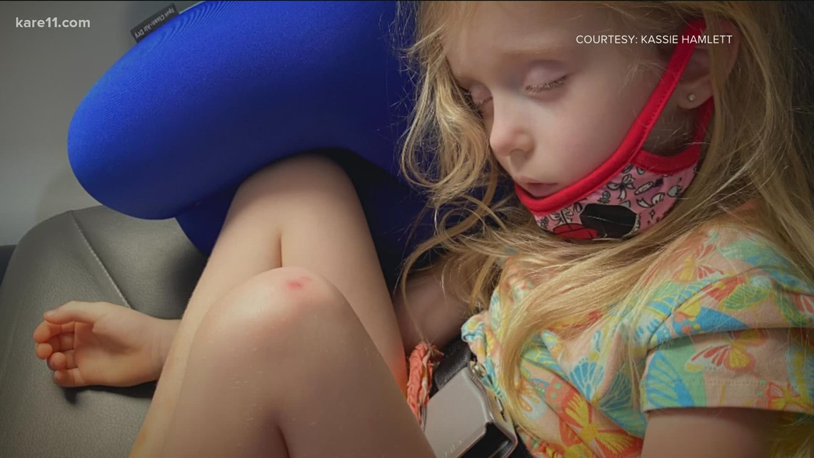 Insurance company to fully cover 4-year-old's gene therapy after initially denying coverage