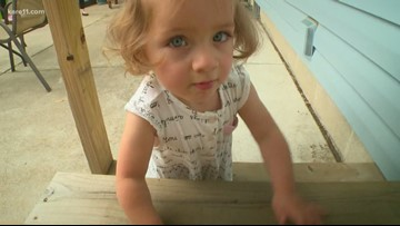 MN toddler among handful of babies to survive In Utero tumor removal