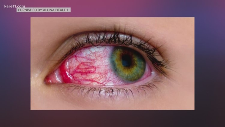 Image result for Red, itchy eyes: Is it pink eye or something else?